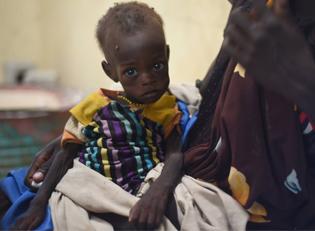 Hungerndes Kind Ostafrika