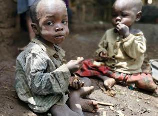 Malnutrition Program Dr Congo suffering children